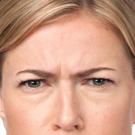 Anti Wrinkle (Botox) & Lip Filler Specialists, Dublin